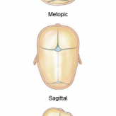 Understanding Three Craniosynostosis Syndromes