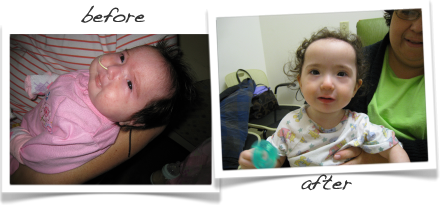 One Miracle at a Time   Craniofacial MD